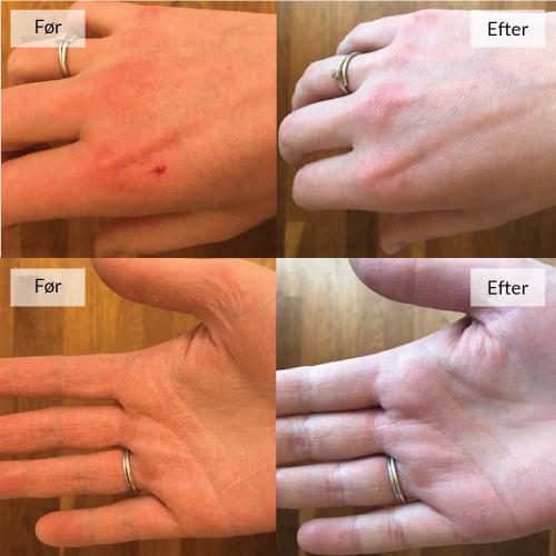 WeeCare Lanolin salve til tørre hænder